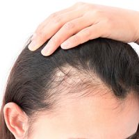 Hair Loss –Not Just A Genetic Predisposition