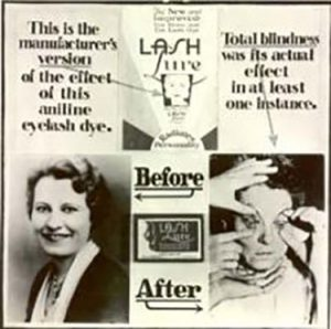 befoer and after effects of cosmetics causing blindness with pictures