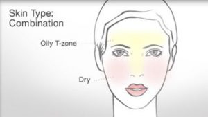 drawn face with oily and dry zones marked